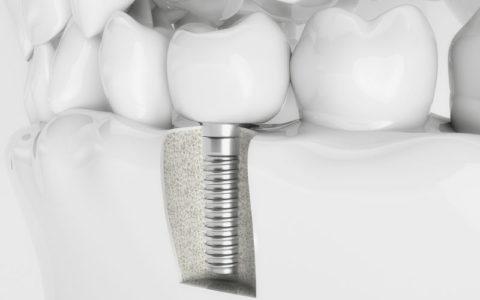 Implanty zębowe i możliwe powikłania po ich wszczepieniu
