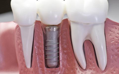 Nowoczesne implanty zębowe z tytanu i ich zalety